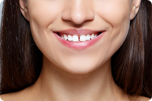 wilmington orthodontist can braces fix gaps in teeth